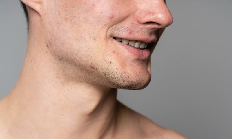 Acné, poros dilatados y manchas